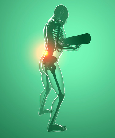 Human body with a weight and back pain, x-ray