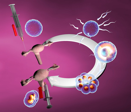 In vitro fertilization, artificial insemination route  Natural cycle in vitro fertilization photo