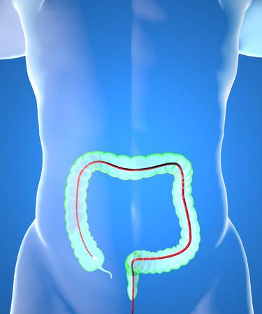 ulceras: La colonoscopia y la sonda