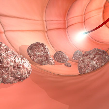 Colonoscopy examination colon digestive system  스톡 콘텐츠