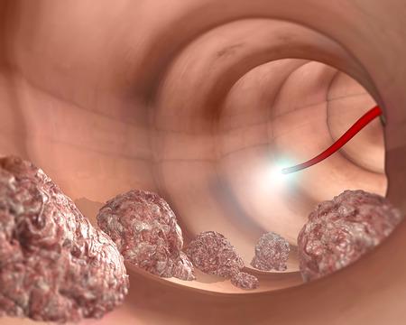 ulceras: Sistema digestivo de colon examen La colonoscopia Foto de archivo