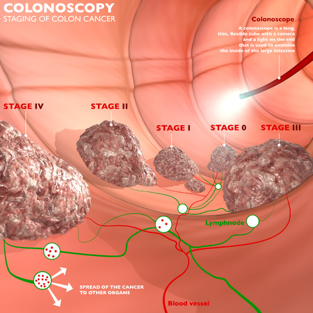 colonoscopy: Colonoscopy examination colon digestive system  Stock Photo