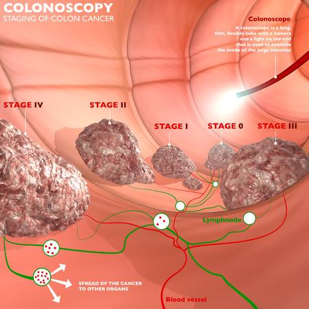 anal: Colonoscopy examination colon digestive system  Stock Photo