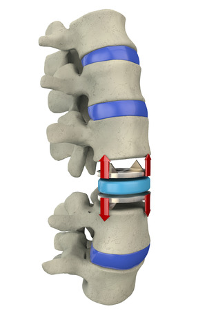 Artificial disc replacement, spine  Surgical operation