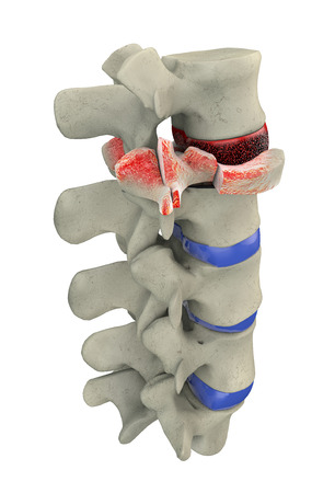 Traumatic vertebral fracture, burst fracture  Stock Photo