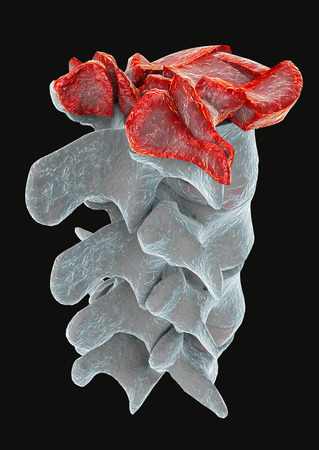 fractures: Traumatic vertebral fracture, burst fracture  Stock Photo