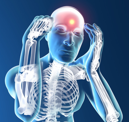 X-ray human with headache on dark blue background