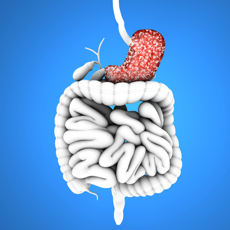 Digestive tract, stomach and ulcers, Digestive System photo