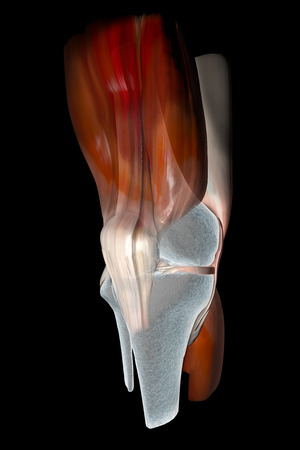 kneecap: Knee ligaments, tendons, bones, muscles x-ray