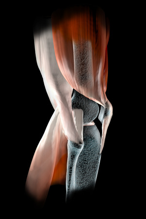 Kniebänder, Sehnen, Knochen, Muskeln Röntgen