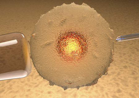 Ovum artificial insemination, artificial photo