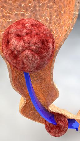 bolus: Path of food, digestion, bolus, intestine