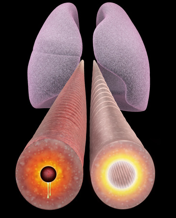 bronchial: Asthma, bronchial section, length. Section of the bronchial tubes, 3d view