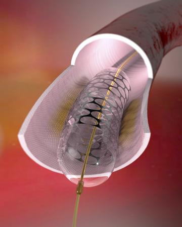 Stent w tętnicy i wewnątrz niego. Stent jest rura mesh wszczepieniu zwężonej tętnicy utrzymać tętnicy otwarte. Cewniki balonowe z stentów są często wykorzystywane w angioplastyk aby rozwinąć zwężoną tętnicę