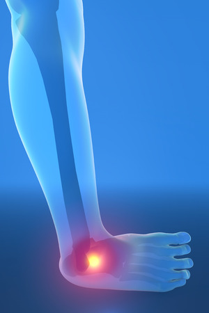 Man running with ankle pain breaking distortion photo