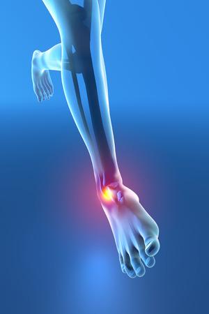 Ember fut a boka fájdalom törés torzítás Stock fotó