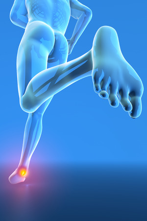 tendons: Man running with ankle pain breaking distortion