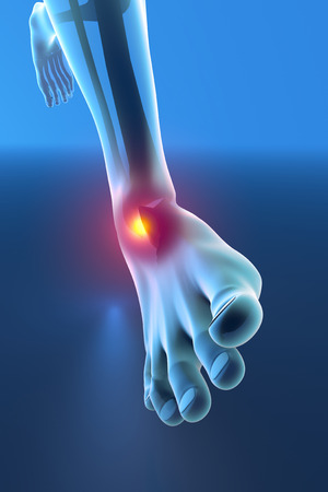 children s feet: Man running with ankle pain breaking distortion