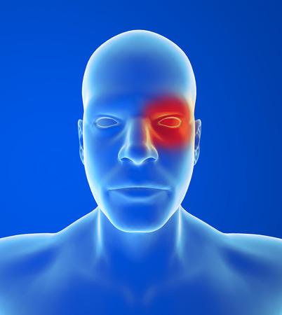 throbbing: Type headache: Cluster pain is in and around one eye Stock Photo