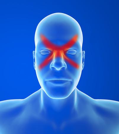 autonomic: Cefalea di tipo: Dolore del seno � di solito dietro la fronte e  o gli zigomi