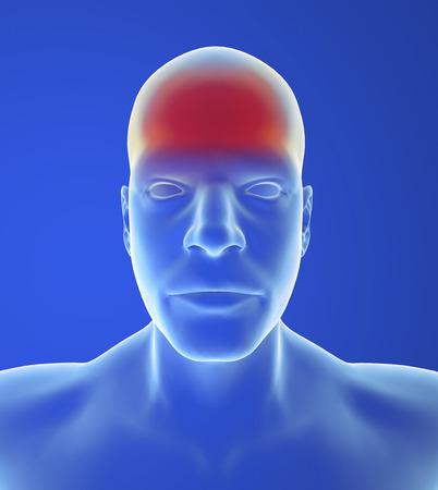 autonomic: Tipo mal di testa: dolore tensione � come una banda comprimendo la testa Archivio Fotografico