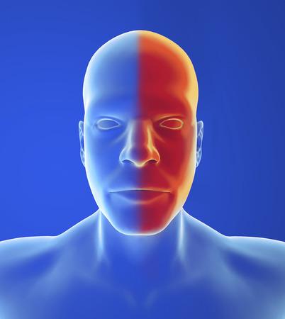 autonomic: Tipo mal di testa: emicrania, nausea e visivi cambiamenti sono tipici di forma classica