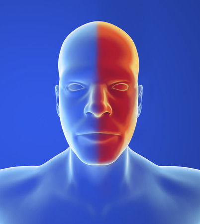 autonomic: Type headache: Migraine pain, nausea and visual changes are typical of classic form Stock Photo