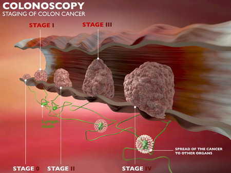 colonoscopy: Section of a portion of the colon, colonoscopy exam, colon, digestive system Stock Photo