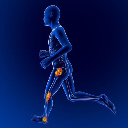 contracture: Men skeleton race, pain inflammation