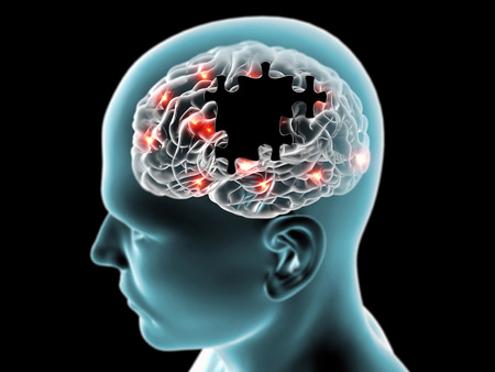 cerebro humano: Rompecabezas enfermedades degenerativas del cerebro Parkinson, Alzheimer Foto de archivo