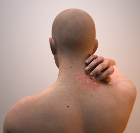 skin disease: Neck dermatitis, skin, burning inflammation Stock Photo