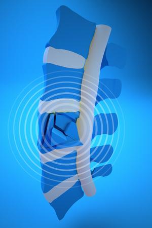 fractura: Tapones, �sea, fracturas vertebrales traum�ticas, fracturas estallar. Secci�n de la columna vertebral Foto de archivo