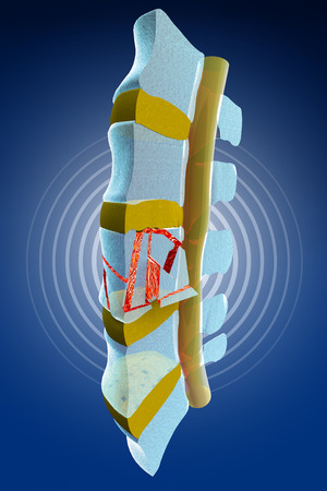 compression  ring: Plugs, marrow, traumatic vertebral fractures, burst fracture. Spine section