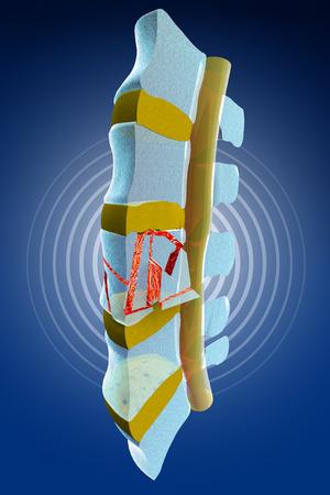 espina dorsal: Tapones, ósea, fracturas vertebrales traumáticas, fracturas estallar. Sección de la columna vertebral Foto de archivo