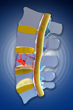 columna vertebral: Tapones, �sea, fracturas vertebrales traum�ticas, fracturas estallar. Secci�n de la columna vertebral Foto de archivo