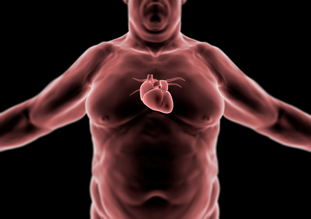 healthy arteries: Human body, fat person, heart and anatomy, radiography Stock Photo