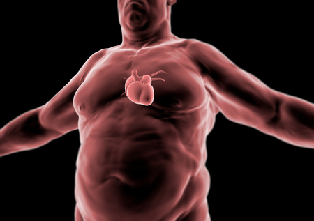 heart problems: Human body, fat person, heart and anatomy, radiography Stock Photo