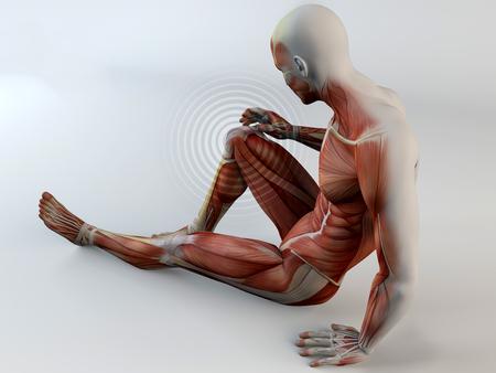 Menselijk lichaam, pijn in de knie, spieren, spierscheur