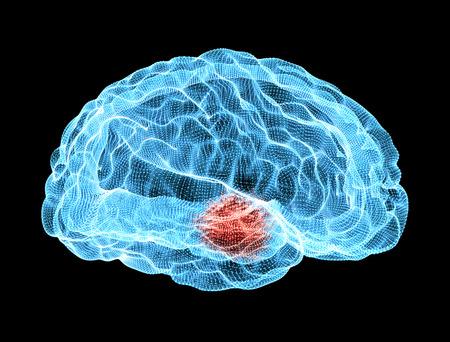 脳変性疾患、パーキンソン