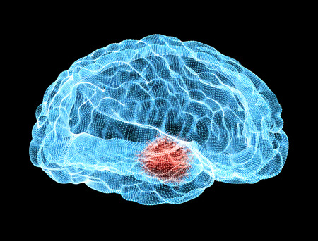 Brain degenerative diseases, Parkinson