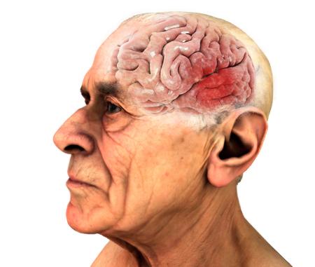 脳変性疾患、アルツハイマー病、パーキンソン病、人間の体、顔。歳の男性。3 d レンダリング 写真素材