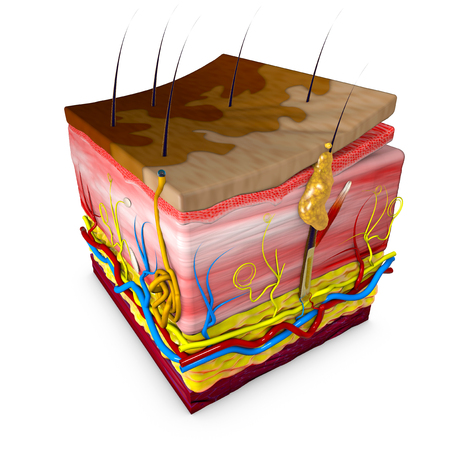 Tinea versicolor is a condition characterized by a skin eruption on the trunk and proximal extremities. The majority of tinea versicolor is caused by the globose Malassezia fungus, although Malassezia furfur is responsible for a small number of cases. Leather section. Rendering in 3d