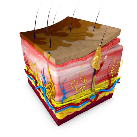 Tinea versicolor는 몸통과 근위 사지의 피부 발진이 특징 인 상태입니다. 대부분의 tinea versicolor는 globose Malassezia 균류에 의해 발생하지만, Malassezia furfur는  스톡 콘텐츠