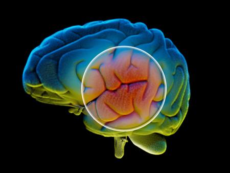 Brain degenerative diseases, Parkinson, synapses, neurons, Alzheimers, 3d rendering Stock Photo