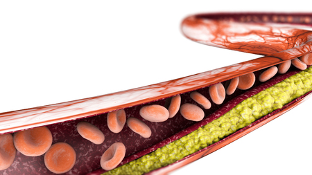 Cholesterol formation, fat, artery, vein, heart. Narrowing of a vein for fat formation Stock Photo