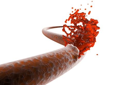 Vein, artery, rupture cut blood hemorrhage. Internal bleeding, cut of a vein and exit of blood 写真素材
