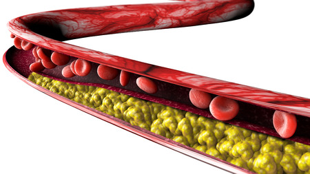 Cholesterol formation, fat, artery, vein, heart. Narrowing of a vein for fat formation Imagens - 98644377