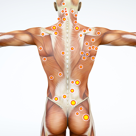 Man and his trigger points. Anatomy muscles. 3d rendering Myofascial trigger points, are described as hyperirritable spots in the fascia surrounding skeletal muscle. Palpable nodules in taut bands of muscle fibers Stock Photo