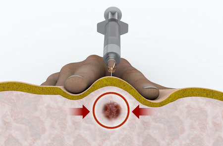 A trigger point injection is an outpatient procedure. Backache. 3d rendering