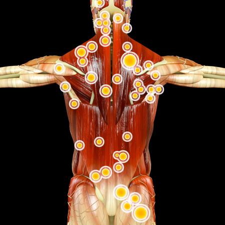 Anatomía del cuerpo humano visto desde atrás. Hombre visto desde atrás con músculos y puntos gatillo resaltados. Representación 3d